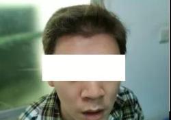 当黄头发遇上了鼠尿味,竟是神经科这种病?你清楚吗?