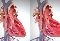 達格列凈(Forxiga)在印度獲準用于治療射血分數降低的心衰患者