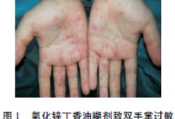 氧化锌丁香油糊剂致过敏反应2例