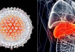 "AP&T:免疫耐受期<font color=""red"">慢性</font>乙型肝炎患者发生肝细胞癌的风险极低"