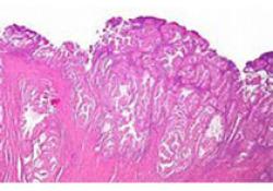 "<font color=""red"">抗体</font><font color=""red"">药物</font><font color=""red"">偶联</font>物Trodelvy显著改善三阴性乳腺癌患者的PFS:III期研究达到终点"