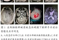 急性硬膜下膿腫1例