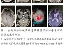 急性硬膜下脓肿1例