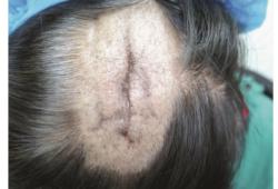 脂水肿性脱发 1 例