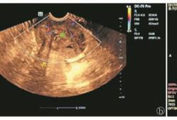 子宫颈恶性外周神经鞘膜瘤1例