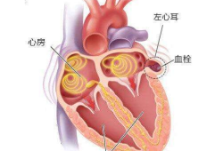 Circulation:冠脈搭橋術中結扎左心耳對房顫患者短期預后的影響