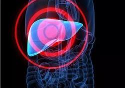 Hepatology:丙型肝炎相关肝细胞癌患者使用无干扰素直接作用抗病毒药物可以提高生存率