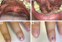 NEJM:粘膜和手指黑色素瘤转移-病例报道