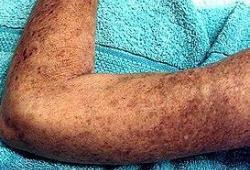 异源细胞疗法FCR001治疗重度硬皮病:IND已获FDA批准