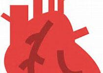 EUR HEART J-CARD PHA:一些非专利心血管药物产品的低质量是一个日益引起关注的问题?