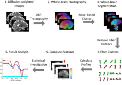"Behavioural Brain Research:利用<font color=""red"">自动</font>纤维束分割技术研究帕金森氏病中的局部白质异常"