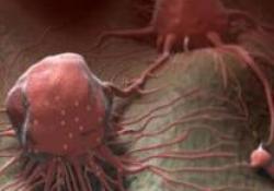 CheckMate-743是首个且唯一证明一线免疫治疗能够改善恶性胸膜间皮瘤患者生存获益的III期临床试验