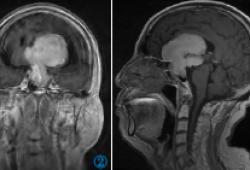 鞍區巨大不典型室管膜瘤誤診垂體瘤1例