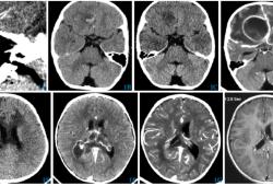 嚙蝕艾肯菌致小兒腦膿腫1例