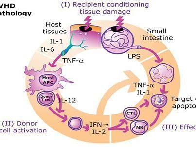 Itolizumab治疗急性GVHD:取得积极结果