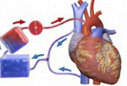 Am J Cardiol:男士30岁就该吃他汀?美国心脏病学杂志述评