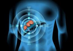 "Hepatology:25-羟维生<font color=""red"">素</font>D的<font color=""red"">血清</font>的生物利用度而不是总水平与肝细胞癌的生存率有关"