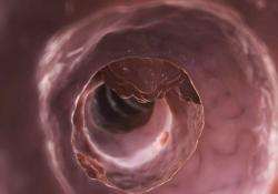 "DCR:结肠镜检查开始时间与<font color=""red"">腺瘤</font>检出率的关系"