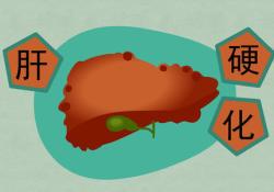 "Dig Liver Dis: 新蝶呤水平升高与肝硬化患者的<font color=""red"">慢性</font>肝功能衰竭和死亡率相关"