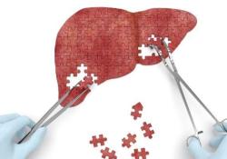 "Dig Liver Dis: 自身<font color=""red"">免疫</font>性肝炎患者血清<font color=""red"">免疫</font><font color=""red"">球蛋白</font>G水平正常化与无移植生存期改善有关"