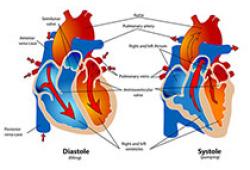 ESC Heart Fail:急性心衰患者瞳孔小,提示预后差!日本研究