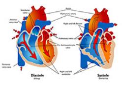 "ESC Heart Fail:急性<font color=""red"">心衰</font>患者瞳孔小,提示预后差!日本研究"