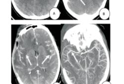 開顱減壓治療單純皰疹病毒性腦炎1例報告并文獻復習
