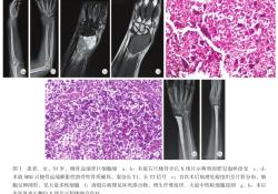 """腕关节置换术治疗桡骨<font color=""""red"""">远端</font>骨巨细胞瘤术后感染1例"""