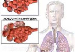 "JAMA Intern Med :雷雨天前夕<font color=""red"">慢</font><font color=""red"">阻</font><font color=""red"">肺</font>或哮喘发作增加!"