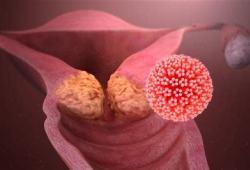 ESMO 2020:抗體-藥物偶聯物Tisotumab vedotin治療復發宮頸癌取得積極進展