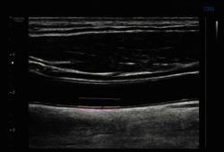 Circulation:將LDL-C濃度控制在70 mg/dL以下或以上對頸動脈粥樣硬化斑塊發生的影響