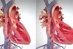 Vericiguat有望在中國獲得批準,用于治療慢性心衰