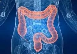 IBD:黏膜嗜酸性粒细胞增多是维多珠单抗在炎症性肠病中治疗效果的独立预测因子