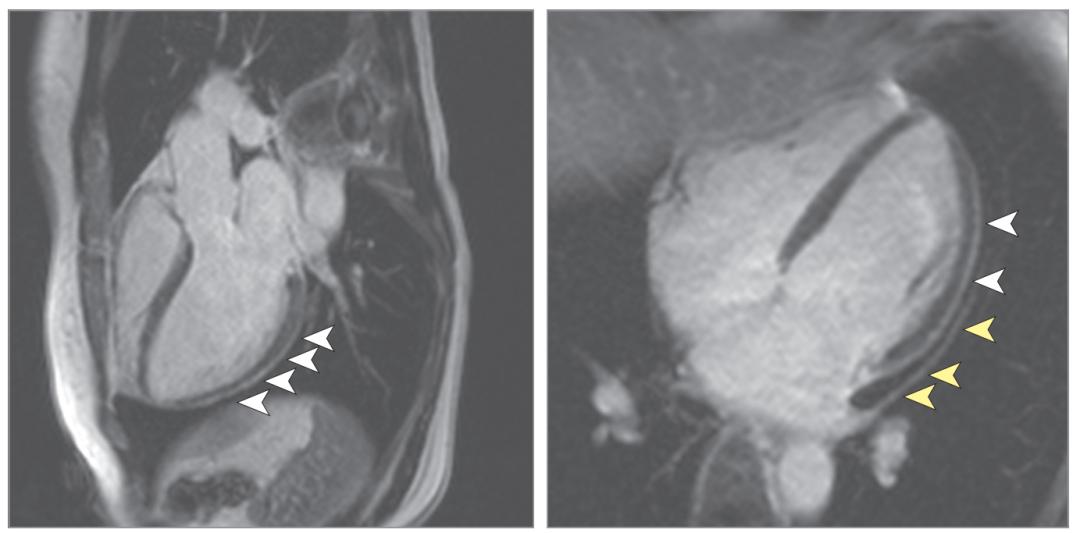 COVID-19康复患者的心血管磁共振成像结果