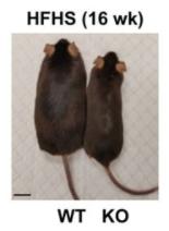Circulation:抑制内皮细胞AGO1可促进脂肪棕色化、改善代谢紊乱