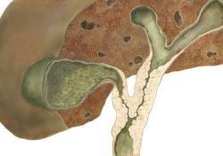 "Clin Gastroenterology H:肿瘤坏死因子拮抗剂在原发性硬化性<font color=""red"">胆管</font><font color=""red"">炎</font>患者中<font color=""red"">的</font>作用分析"