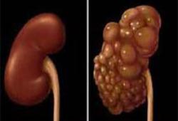 检测早期肾损伤,这个检验指标为什么备受推崇?