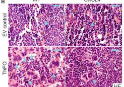 "Blood:造血细胞高表达CXCL4促进MPN骨髓<font color=""red"">纤维</font><font color=""red"">化</font>进展"