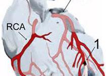 Circulation:经皮冠状动脉介入治疗置入药物洗脱支架后的双重抗血小板治疗时间