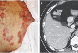 NEJM:胰高血糖素瘤相关的坏死性迁移性红斑-病例报道