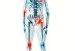 Arthritis Care Res:万人数据分析,1/4关节炎和超重有关,减轻体重可降低风险