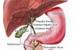 "The Lancet Gastroenterology & Hepatology:不必活检""受罪"",识别高危脂肪肝,无创血检技术带来希望"