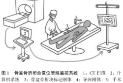 智能监视系统辅助闭合复位治疗复杂骨盆骨折一例