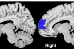 Circulation:精神刺激时前额叶皮质激活越明显,未来发生心血管不良事件的风险越大!