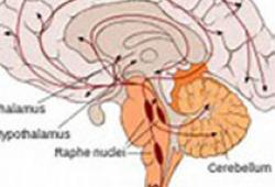 JAMA Neurol:选择性5-羟色胺再摄取抑制剂对卒中幸存患者卒中复发及抑郁症状的影响