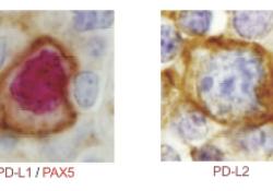 Blood:PD-1的免疫逃逸是富含T细胞/组织细胞的大B细胞淋巴瘤的定义特征