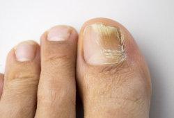 """得了灰指甲怎么治?只需坚持一个方法,""""连根拔起""""不复发"""