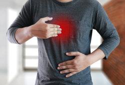 烧心、干咳困扰数年,看了6个科室都没找到病因!原来是胃液走错路