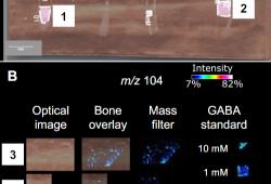 Blood:神经递质受体GABBR1直接调控造血干/祖细胞的增殖和功能