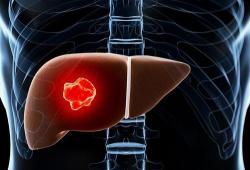 WorldJGastroenterology:高尔基蛋白73:一种评估肝病患者肝硬化和预后的生物标志物